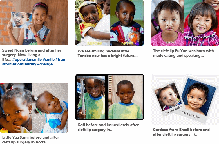 Operation Smile - Pinterest Marketing For Nonprofits (1)